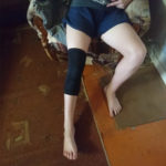 Review Image (Knee) 14